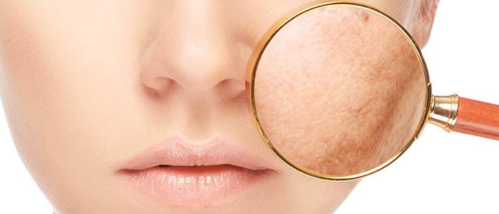 tratamiento despigmentante facial