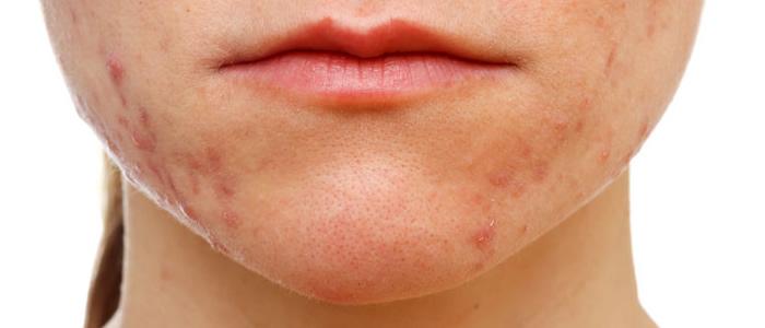 tratamiento facial anti-acne