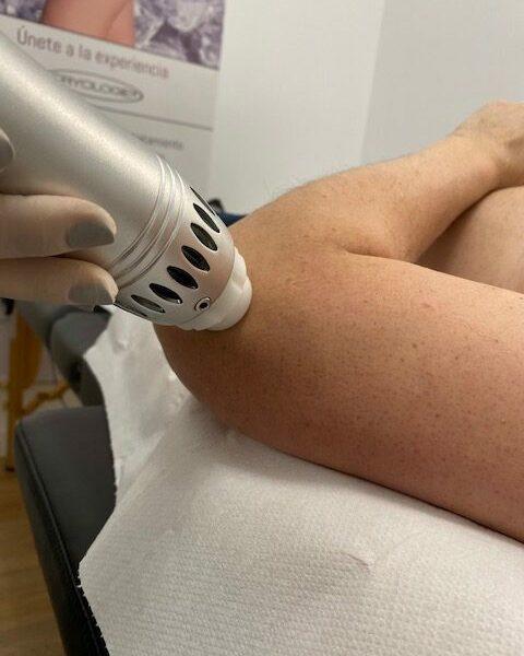 ondas de choque fisioterapia codo 3