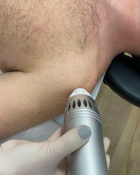 ondas de choque fisioterapia hombro